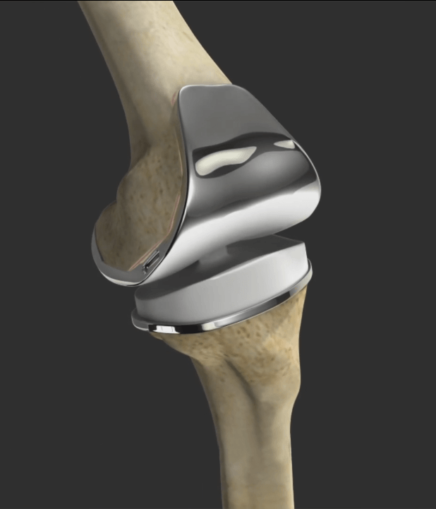Correction of a Loose Knee Replacement