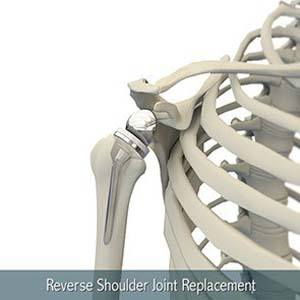 Revision Shoulder Replacement