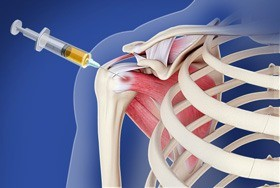 Intraarticular Shoulder Injection